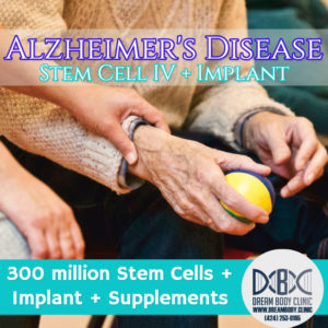 Alzheimers Stem Cell Treatment Dreambody Clinic
