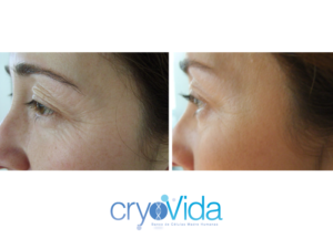 cryovida stem cell facial facelift at dreambody clinic 1