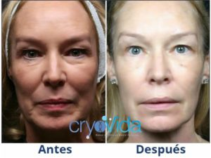 cryovida stem cell facial facelift at dreambody clinic 2