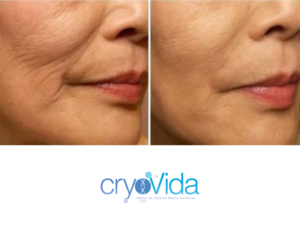 cryovida stem cell facial facelift at dreambody clinic close up