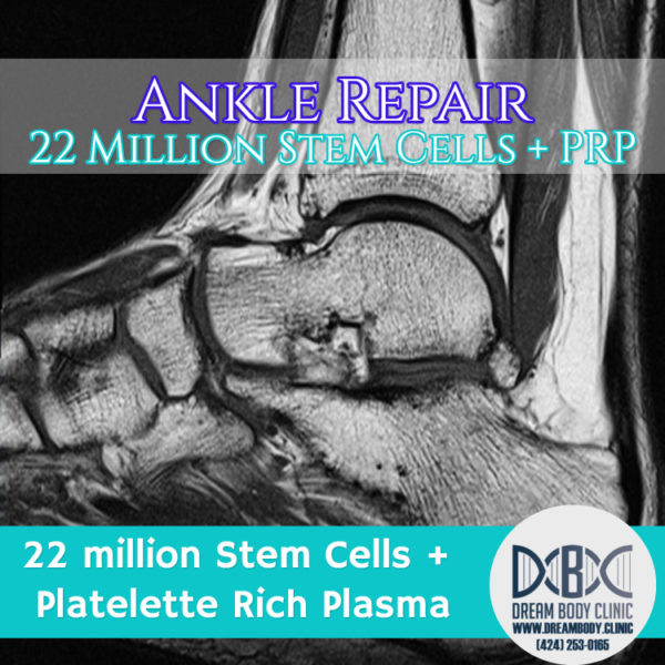 stem cell ankle repair dreambody clinic blog