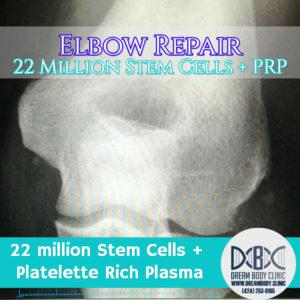 stem cell elbow repair dreambody clinic