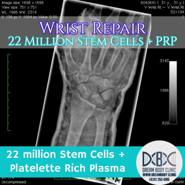 wrist repair stem cell treatment dreambody clinic
