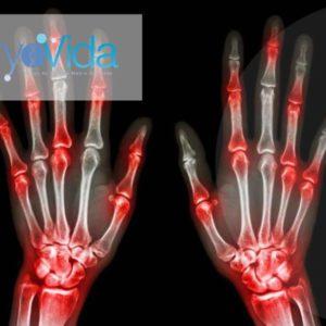 Wrist Stem Cell Treatment