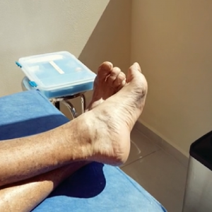 Plantar Fasciitis stem cell repair at dream body clinic
