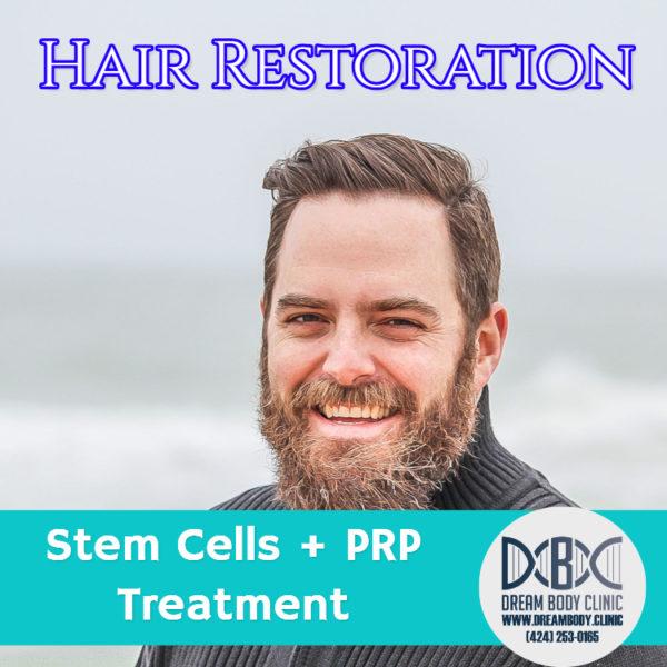 Hair Restoration Stem Cell + PRP Treatment Dreambody Clinic