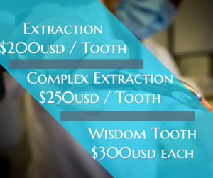 Tooth Extraction Dreambody Clinic
