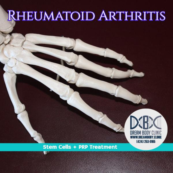 reumatoid arthritis stem cell treatment shop