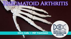 rheumatoid arthritis stem cell treatment