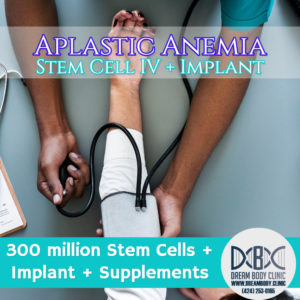Aplastic Anemia stem cell treatment dreambody clinic