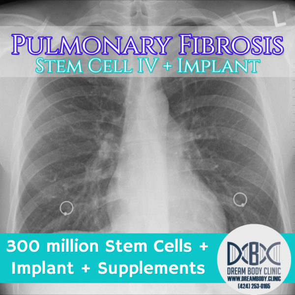 Pulmonary Fibrosis stem cell treatment dreambody clinic youtube