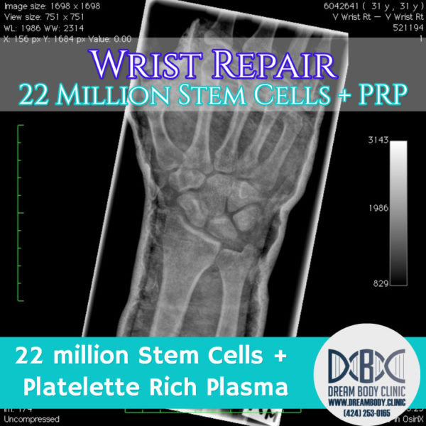 wrist repair stem cell treatment dreambody clinic