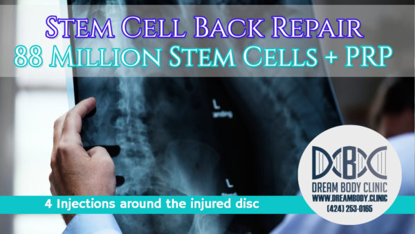 stem cell back repair + PRP at dreambody clinic