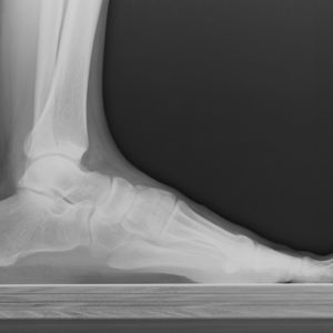 Ankle and Plantar Fasciitis Stem Cell Treatments