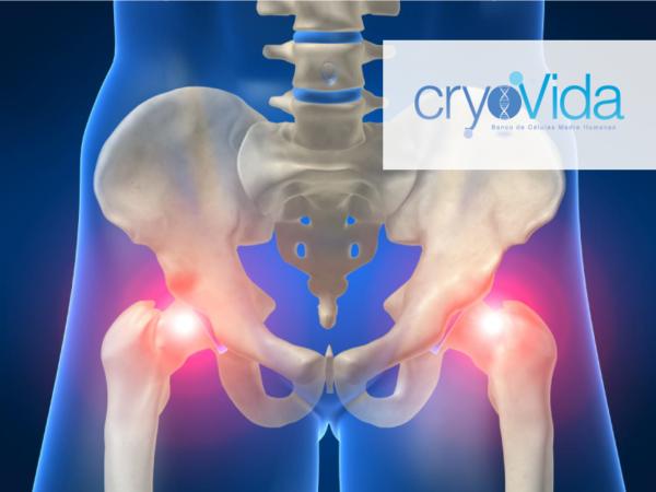 Hip stem cell Treatments