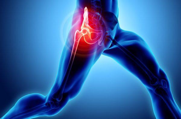 stem cell hip treatment