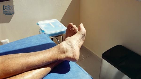Plantar Fasciitis stem cell repair at dream body clinic