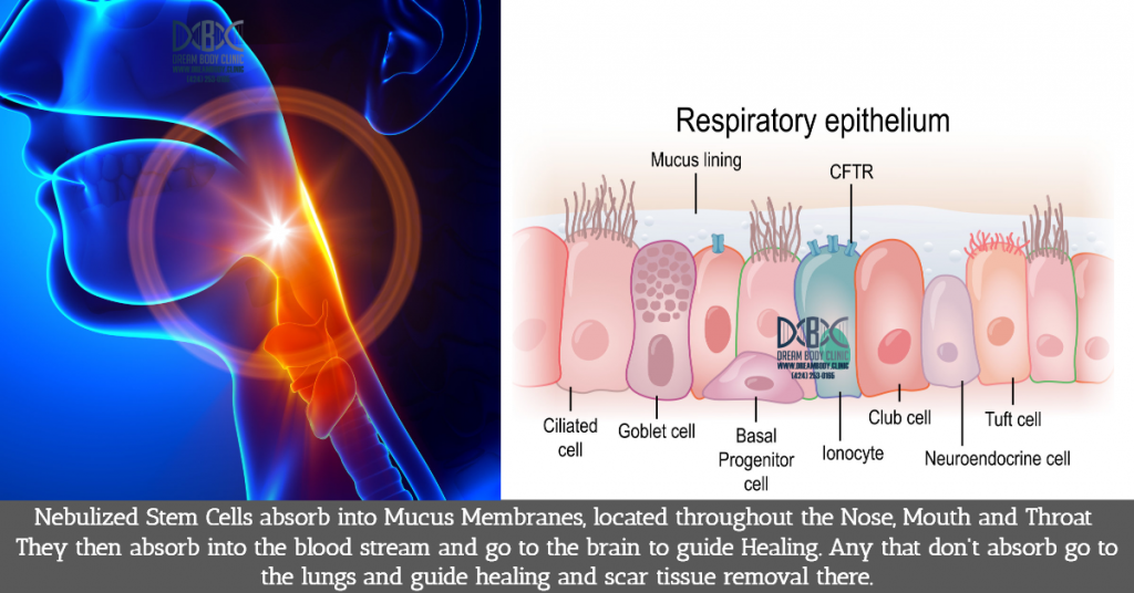 Nebulized Stem Cell Therapy for Brain Health