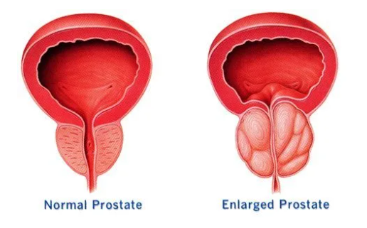 enlarged prostate stem cell treatment at dream body clinic puerto vallarta mexico