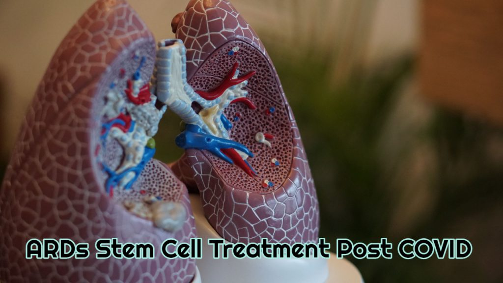 ARDs Stem Cell Treatment Post Covid